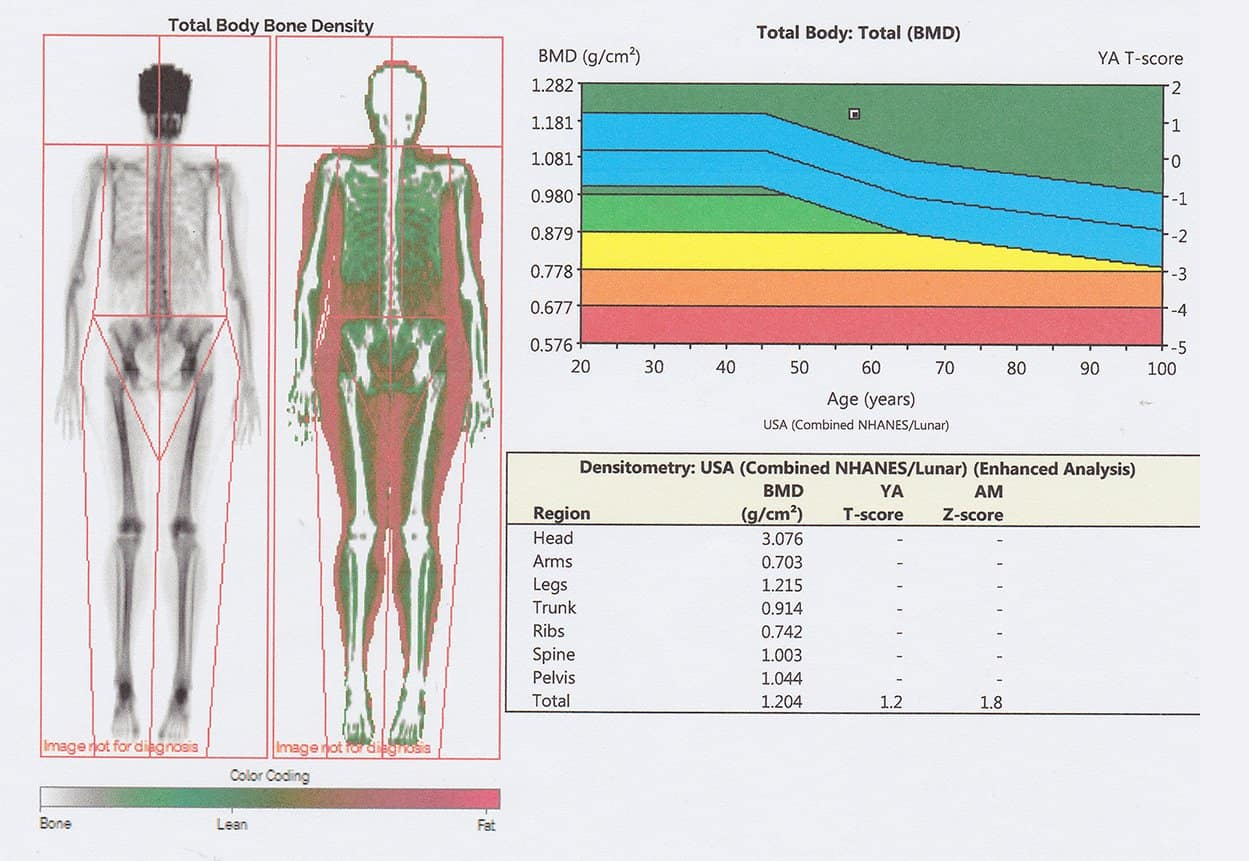 Analyzing Your Body Composition with the Dexa Scan Test: An Honest Review 5
