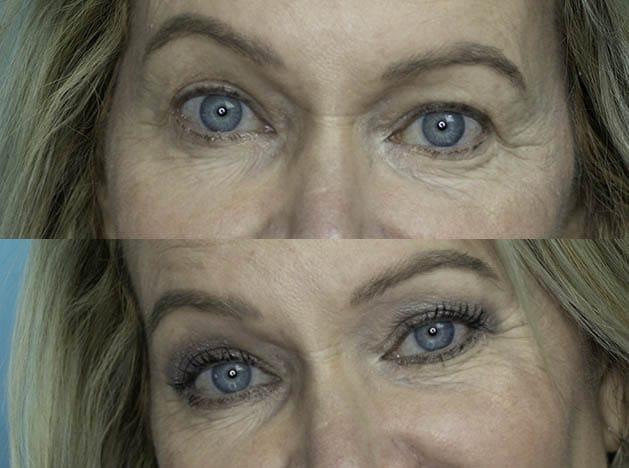 Easy One Eyeshadow Eye Makeup for Older Hooded Eyes 28